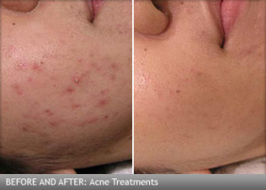 mederma and acne scars | Skin | tomuch.us